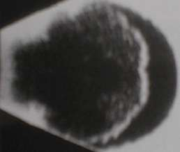 asteroid hyalosis on b scan - photo #16