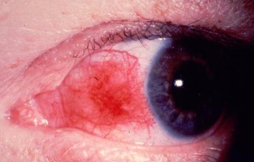 steroid eye drops side effects glaucoma