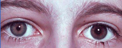 heterochromiaDilated Pupils Drugs Miosis