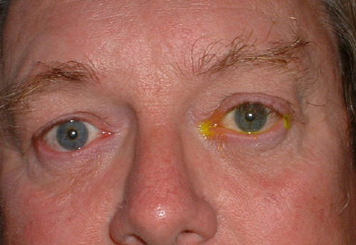 Causes Of Eye Drooping In Dogs