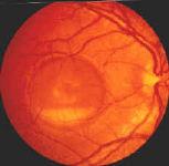 best s disease vitelliform macular dystrophy heredofamilial macular    Best Disease Macular Dystrophy